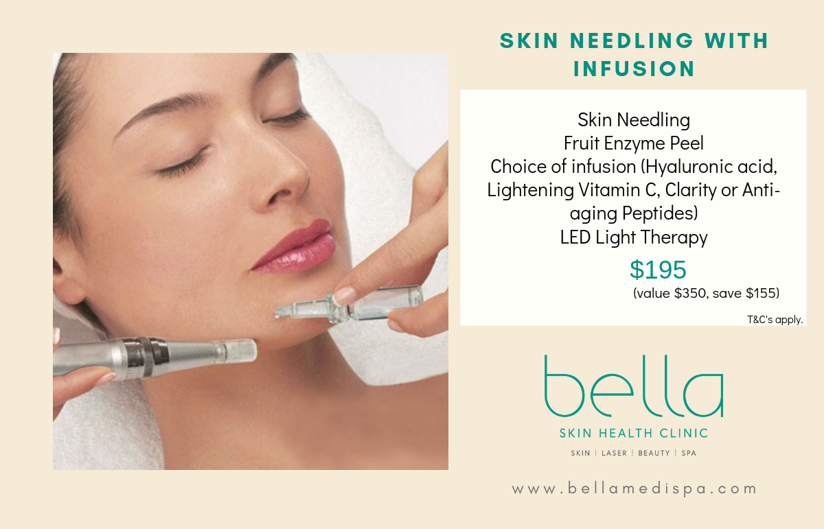 Save $155 on skin needling